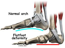 Flat Feet, Normal Arch - Orthotics